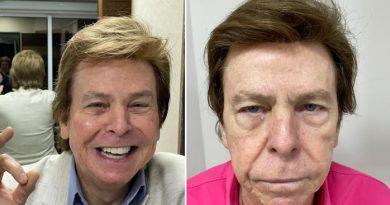 Especialista em harmonização facial de Nelson Rubens explica os efeitos do procedimento no rosto do apresentador